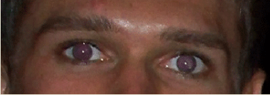 Нормальные глаза