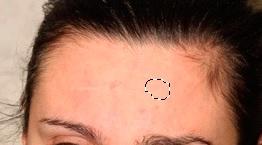 Здоровый участок кожи